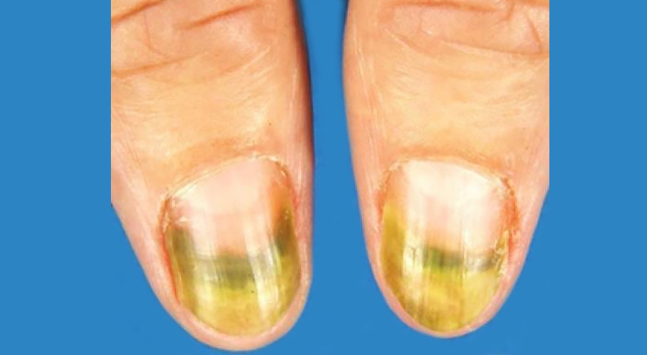 green nail syndrome @TheRoyaleIndia