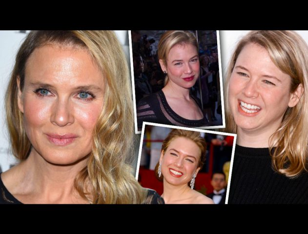 renee zellweger plastic surgery @TheRoyaleIndia