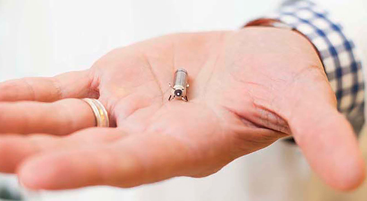 Medtronic World's Smallest Pacemaker @TheRoyaleIndia