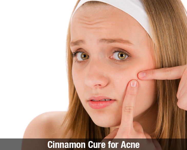 Cinnamon cure for acne @TheRoyaleIndia
