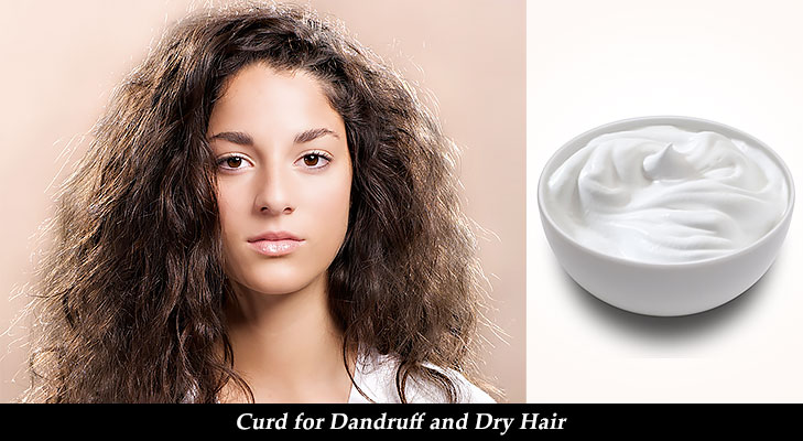Curd for Dandruff and dry hair @TheRoyaleIndia