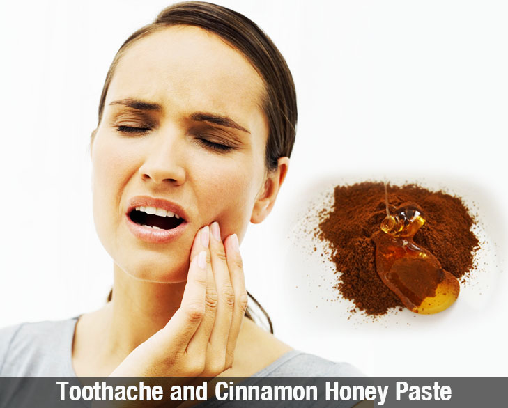 toothache and cinnamon honey paste @TheRoyaleIndia