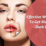 10 Best Ways To Get Rid Of Dark, Pigmented And Scaly Lips Naturally